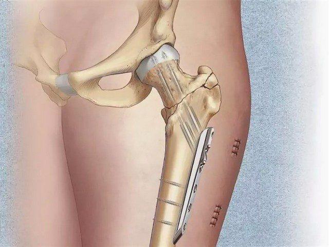 Лечение и сроки восстановления при переломе шейки бедра