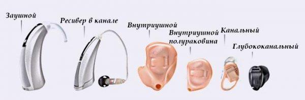Рекомендации по приобретению слуховых аппаратов и их использованию