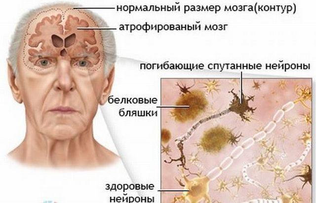 Как распознать деменцию у пожилого человека и помочь ему