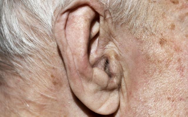 Что происходит с ушами по мере старения