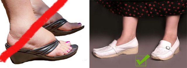 Выбор подходящей обуви