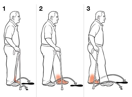 Как правильно ходить с тростью