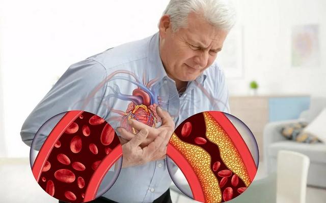 Как снизить риск развития сердечно-сосудистых заболеваний в пожилом возрасте